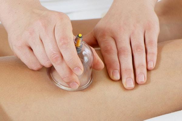 Баночный массаж при плохом кровообращении