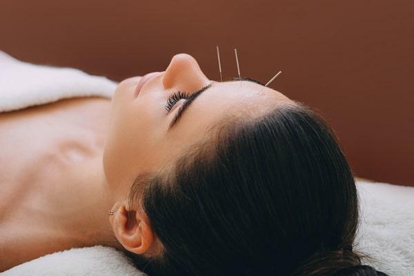 Иглоукалывание помогает при неврите лицевого нерва